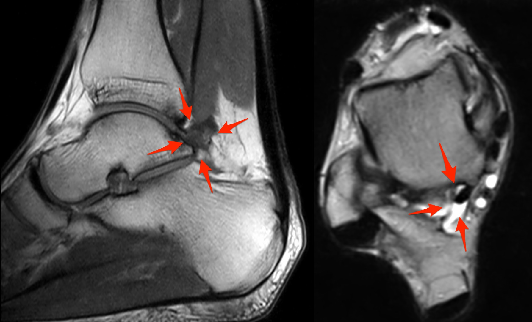 posterior ankle impingement | coachingultrasound